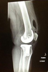 kolano - zdjęcie rentgenowskie
